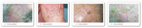 Click to view Actinic Keratosis images