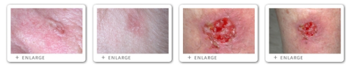 Click to view Basal Cell Carcinoma images