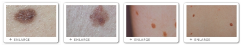 Click to view Images of Moles