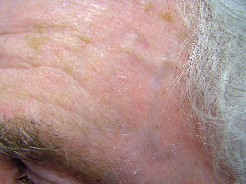 Actinic keratosis: MedlinePlus Medical Encyclopedia
