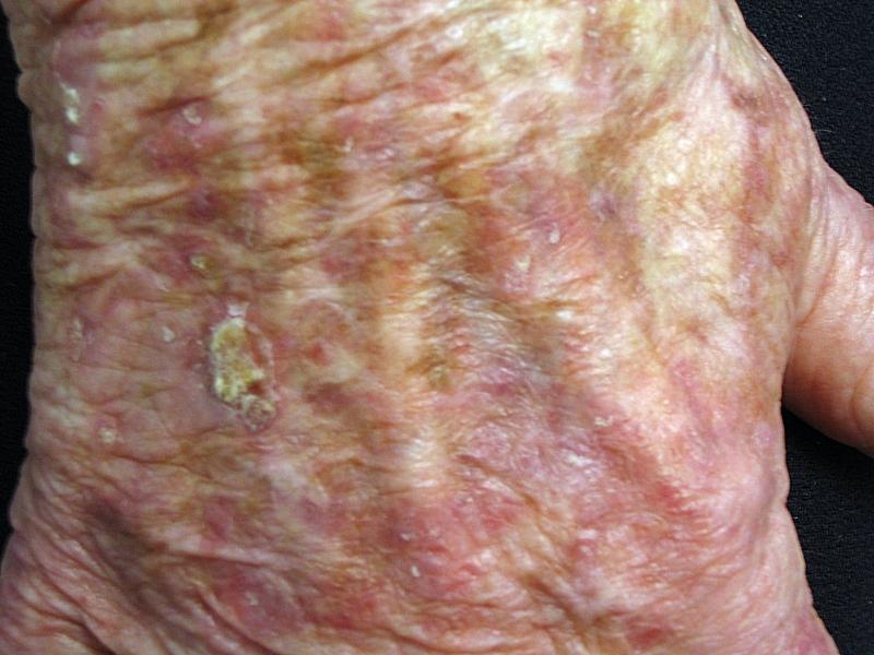 scaly spots on skin #10
