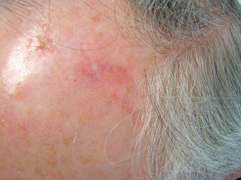 White Spots on Skin | MD-Health.com