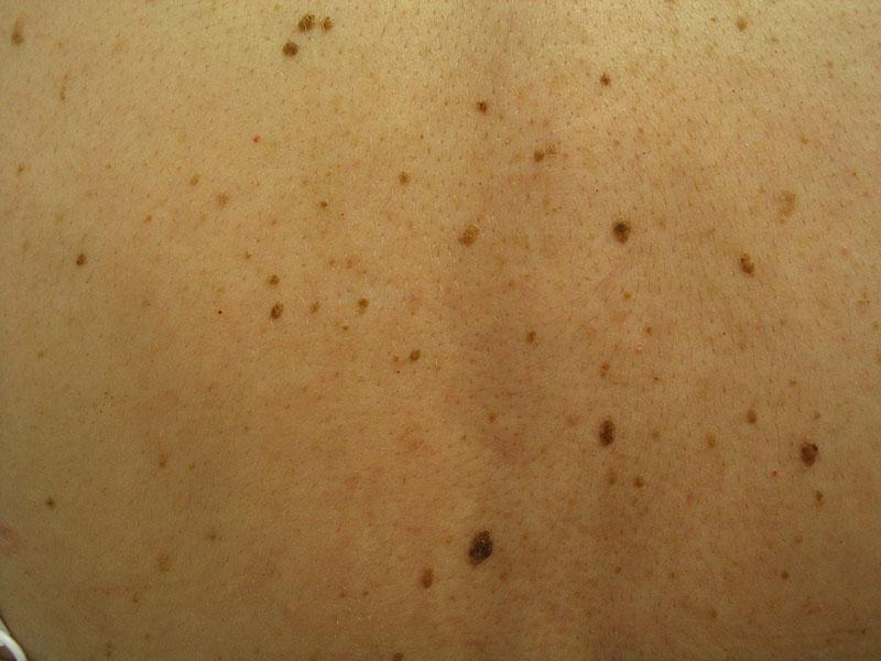 melanoma essay