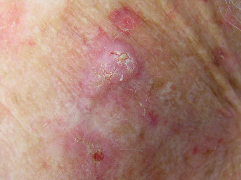 Keratosis Squamous Cell More Images of Squamous Cell