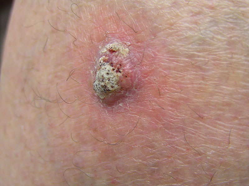 Squamouse cell skin cancer